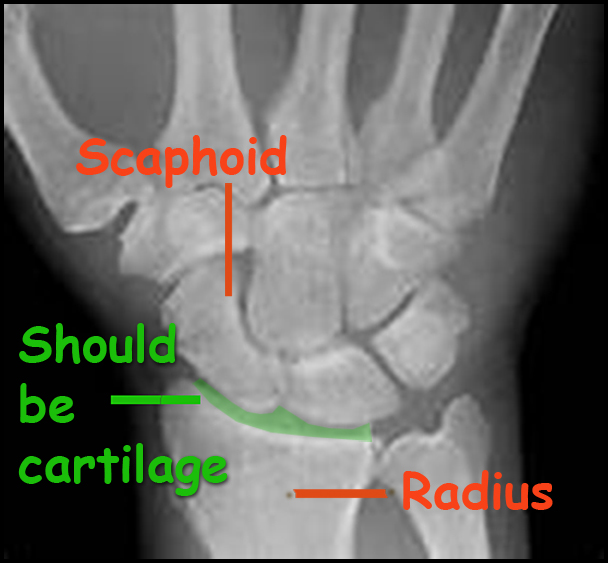 A web captured image of a wrist X-ray to illustrate what was addressed in my own wrist.  This is looking down on the right hand.  The scaphoid is the bone that was seriously arthritic and had to come out.  The green area shows where is SUPPOSED to be cartilage between the scaphoid and the radius but where, among other bone interfaces  in the wrist, I had none.